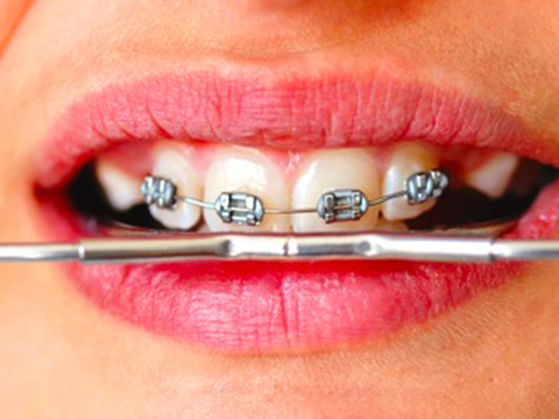 Cabinet d'Orthodontie Blanchard - Les Appareillages - Ancrage extra oral