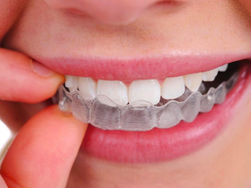 Cabinet d'Orthodontie Blanchard - Les Appareillages - Appareils invisibles