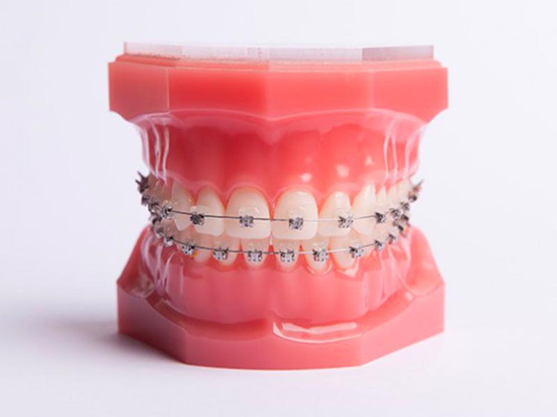 Cabinet d'Orthodontie Blanchard - Les Appareillages - Appareil multibagues