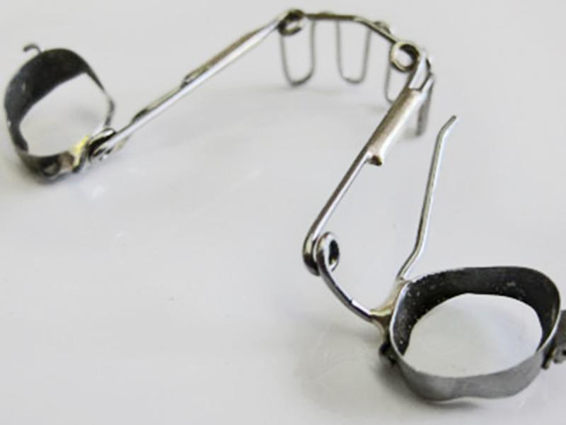 Cabinet d'Orthodontie Blanchard - Les Appareillages - Grille anti-pouce / anti-langue