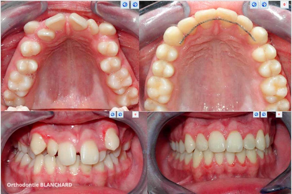 Cabinet d'Orthodontie Blanchard - Galerie Photo - Avant Après